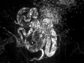 spermathecae-2b_gfp